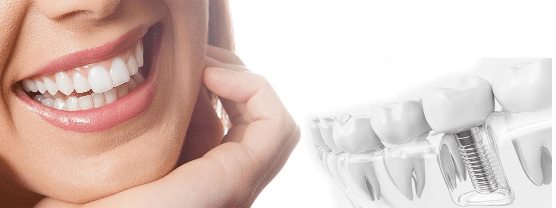 Prothesenreparatur am Tag der Behandlung
